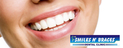 Implant in Lucknow | Braces in Lucknow - Orthodontistinlucknow