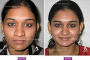 Nose Job Surgeons In Lucknow
