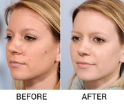 Mole Treatment In Lucknow