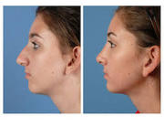 Best Nose Job Surgeons In Lucknow