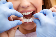 Hire The Best Orthodontist for All Your Orthodontia Solutions